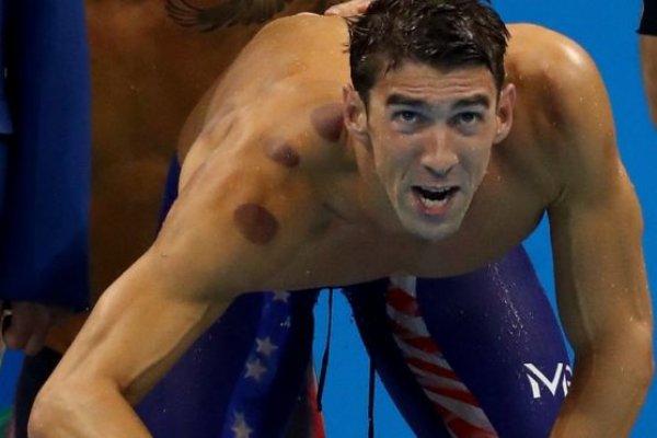 Olimpiyat sporcularındaki esrarengiz lekelerin sırrı