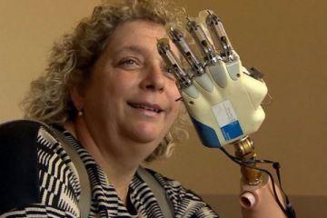 Hisleri iletebilen ilk taşınabilir biyonik el geliştirildi